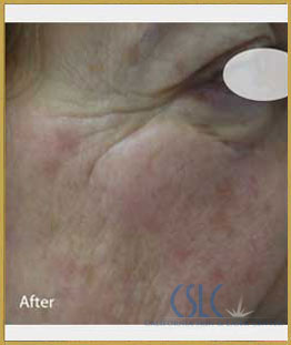 After - Infini Radiofrequency Microneedling Case 11