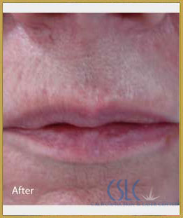 After - Infini Radiofrequency Microneedling Case 12