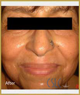 After - Infini Radiofrequency Microneedling Case 13