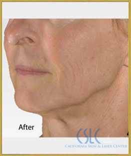 After - Infini Radiofrequency Microneedling Case 1