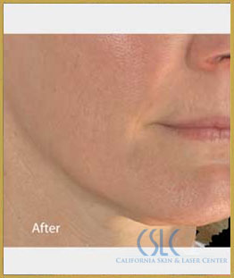 After - Infini Radiofrequency Microneedling Case 2
