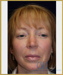 After - Microlaserpeel and BroadBand Light Case 34