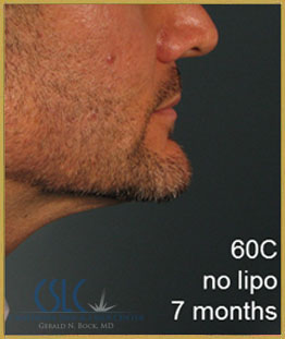 After - Treatments For Men Case 44