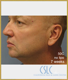 After - Treatments For Men Case 43