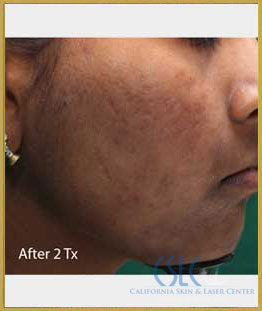 After - Infini Radiofrequency Microneedling Case 14