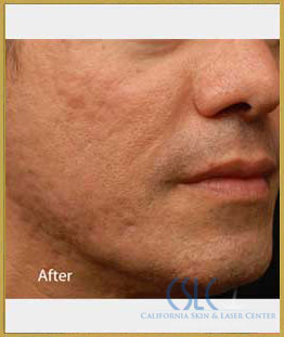 After - Infini Radiofrequency Microneedling Case 7