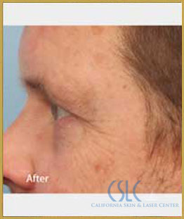 After - Infini Radiofrequency Microneedling Case 8