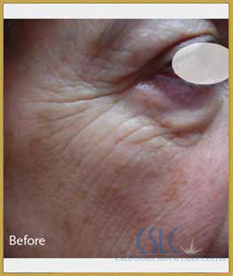 Before - Infini Radiofrequency Microneedling Case 11