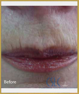 Before - Infini Radiofrequency Microneedling Case 12