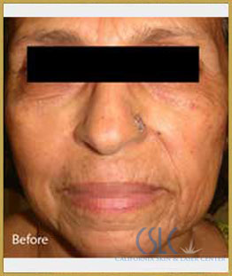 Before - Infini Radiofrequency Microneedling Case 13