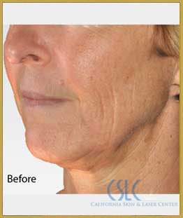 Before - Infini Radiofrequency Microneedling Case 1