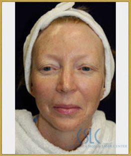 Before - Microlaserpeel and BroadBand Light Case 65
