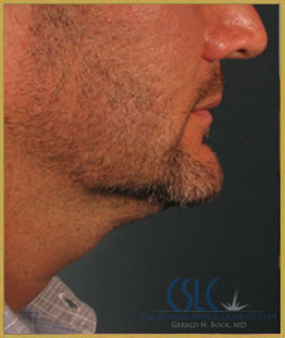 Before - Treatments For Men Case 44