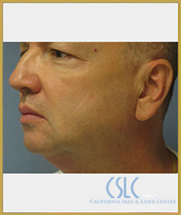 Before - Treatments For Men Case 43