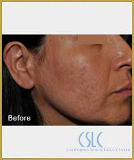 Before - Infini Radiofrequency Microneedling Case 2