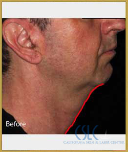 Before - Infini Radiofrequency Microneedling Case 4