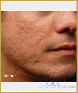 Before - Infini Radiofrequency Microneedling Case 7