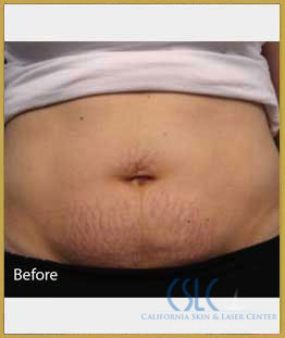 Before - Infini Radiofrequency Microneedling Case 9