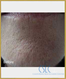 Before - Infini Radiofrequency Microneedling Case 10