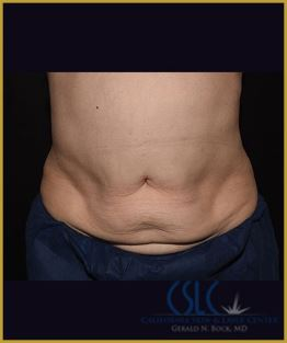 After - CoolSculpting Lower Abdomen Case 1