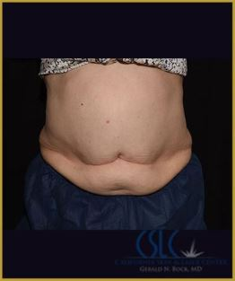 Before - CoolSculpting Lower Abdomen Case 1