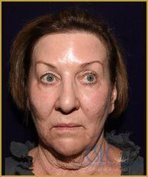 California Skin & Laser Center before Croton Oil Peel Treatment patient image at California