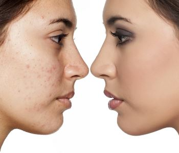 UV skin damage solutions help with dark skin spots removal near Stockton, CA