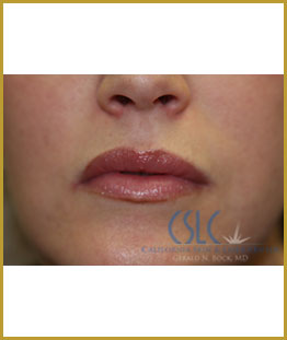After - Upper Lip Filler Treatment Case 1