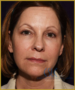 California Skin & Laser Center after J-Plasty treatments patient image at California