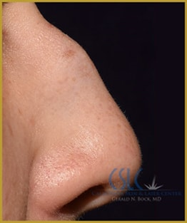 Before - Nose Filler Case 35