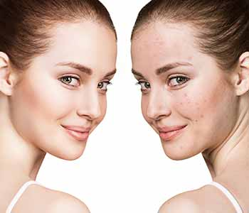 At California Skin & Laser Center, offer oral medications, including Accutane. For stubborn, severe, or cystic acne, topical medication cannot penetrate deep enough to effectively treat the blemishes