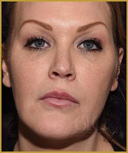 California Skin & Laser Center After Super Nefertiti Lift Patient Image at California 1