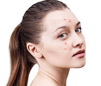 How to Get Rid of Acne in Elk Grove area