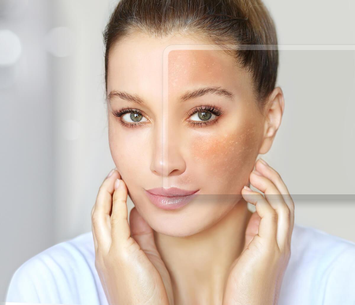 Removal of Brown Spots at California Skin & Laser Center in Stockton Area