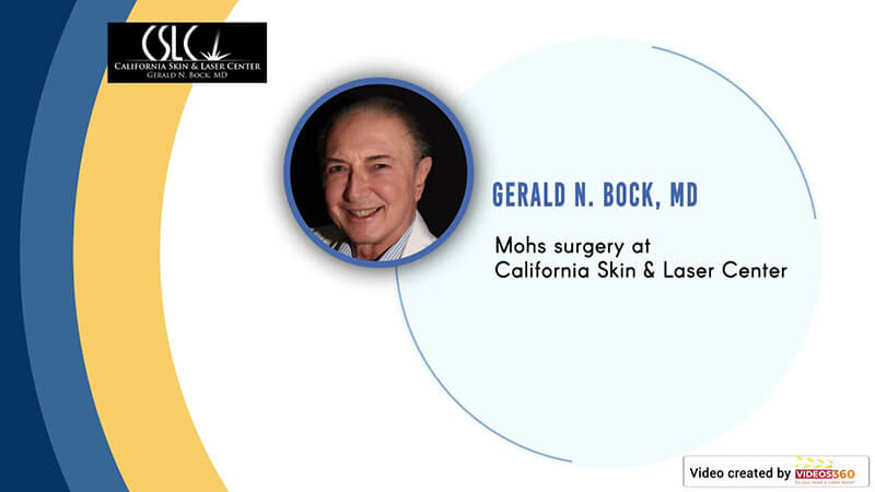 Mohs surgery at California Skin & Laser Center - Dr. Gerald Bock